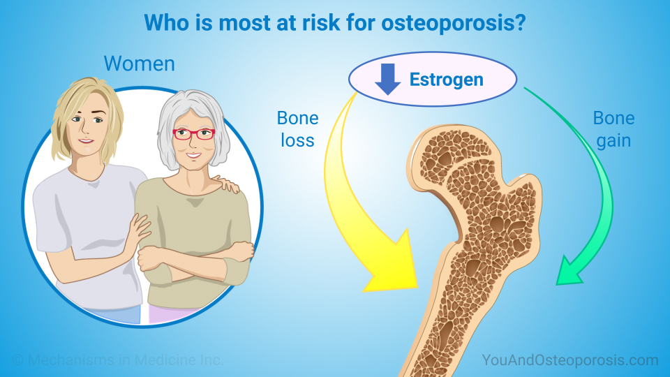 14+ Can secondary osteoporosis be cured viral